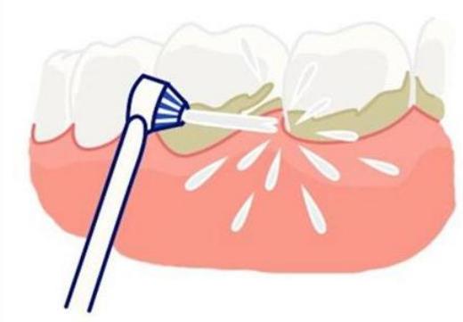 金华口腔医院:2020年超声波洁牙后能马上吃东西吗?