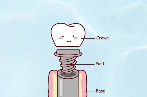 金华口腔医院:2020年骨粉是什么?种植牙为什么要种骨头?